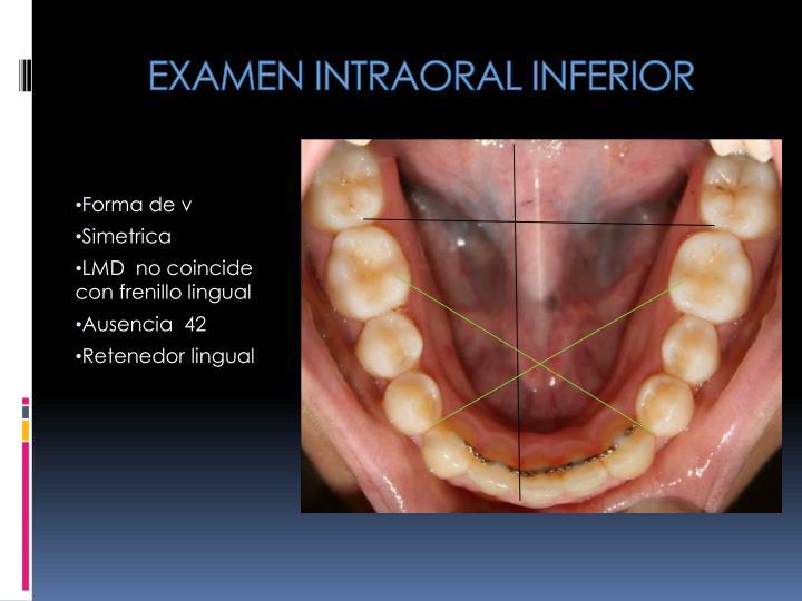 EXAMEN INTRAORAL INFERIOR
