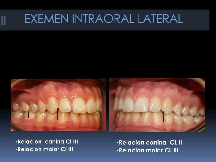 EXEMEN INTRAORAL LATERAL