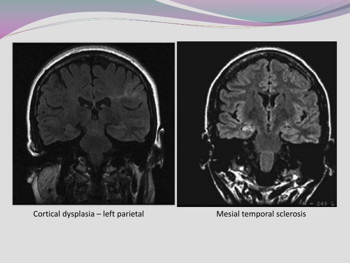 Cortical dysplasia – left parietal