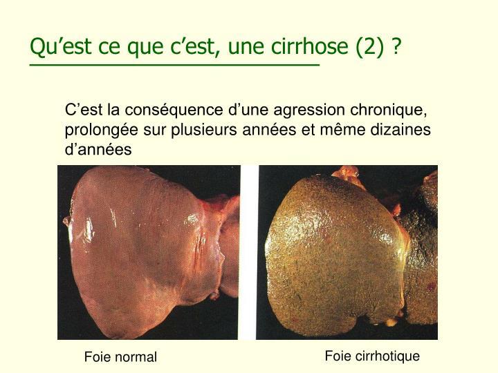 Qu'est ce que c'est, une cirrhose (2) ?