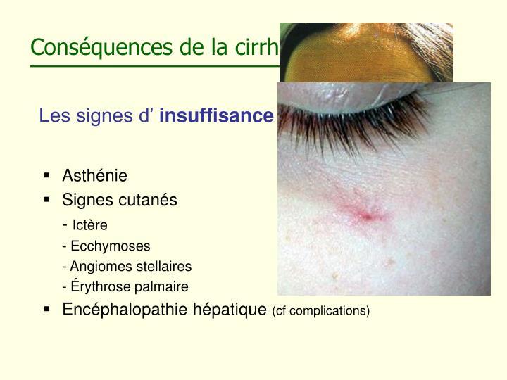 Conséquences de la cirrhose