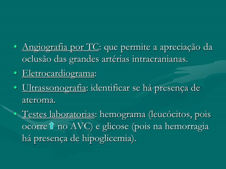 Angiografia por TC