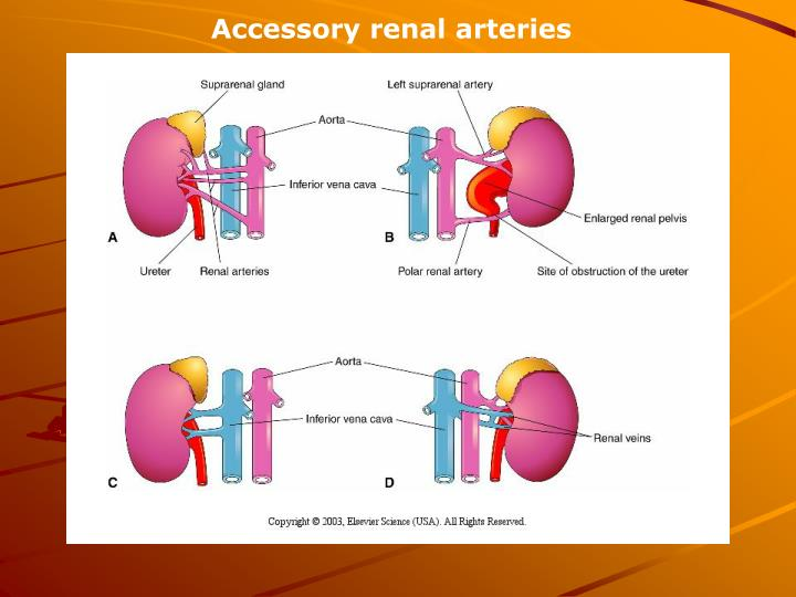 Accessory renal arteries
