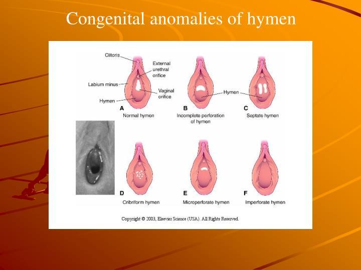 Congenital anomalies of hymen
