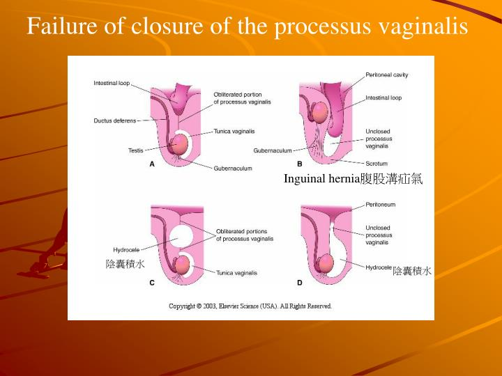 Failure of closure of the processus vaginalis