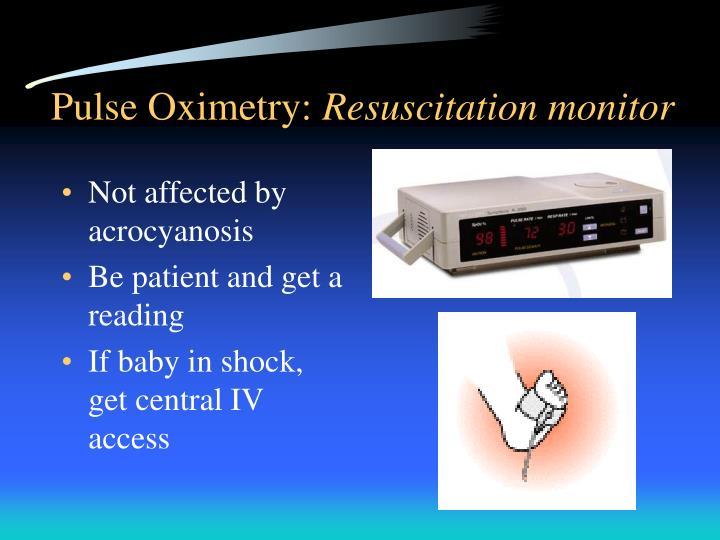 Ppt Neonatal Resuscitation Powerpoint Presentation Id