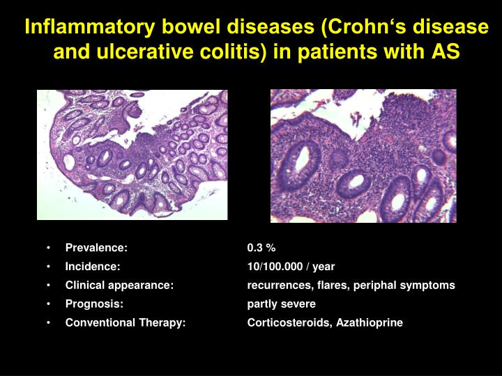 Inflammatory bowel diseases (Crohn's disease and ulcerative colitis) in patients with AS