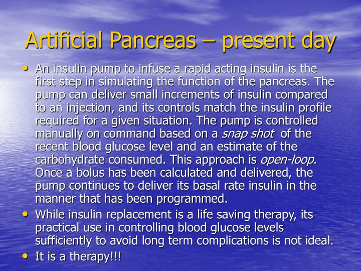 Artificial Pancreas – present day