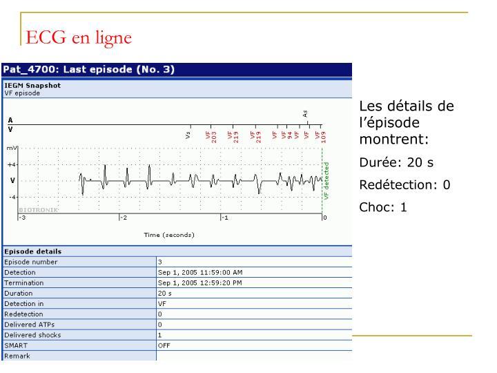 ECG en ligne