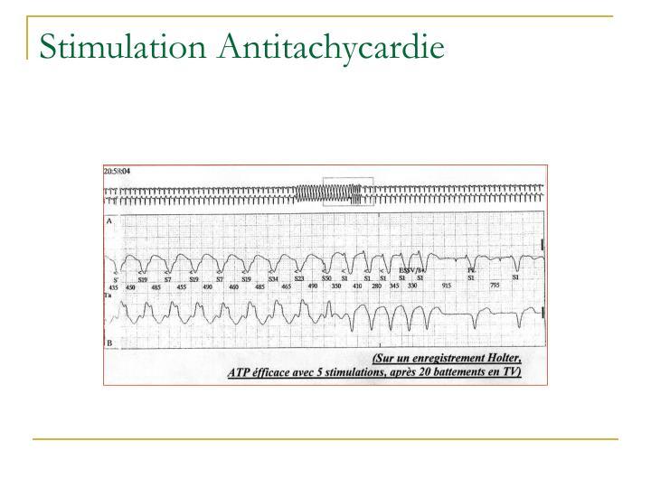 Stimulation Antitachycardie