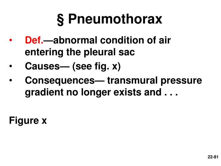 § Pneumothorax