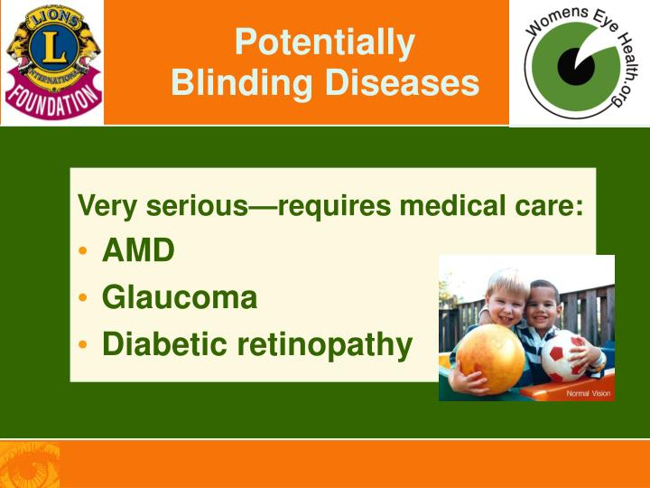 Potentially Blinding Diseases