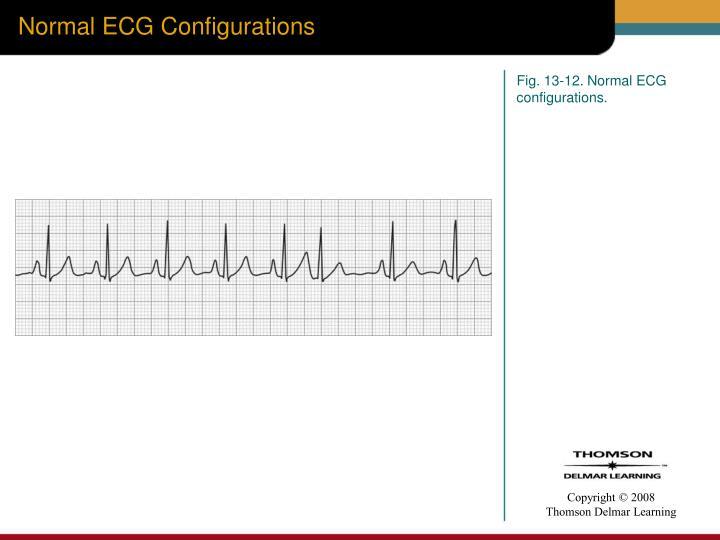Normal ECG Configurations
