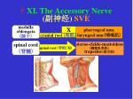 xi the accessory nerve sve