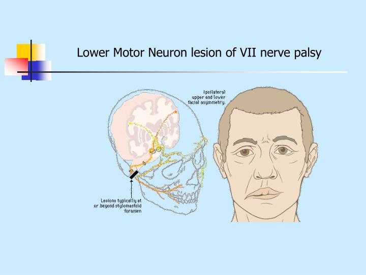 Lower Motor Neuron lesion of VII nerve palsy