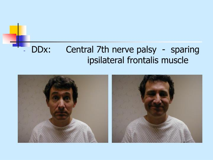 DDx:	Central 7th nerve palsy  -  sparing 			ipsilateral frontalis muscle