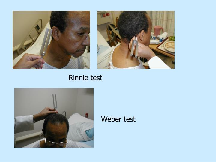 Rinnie test