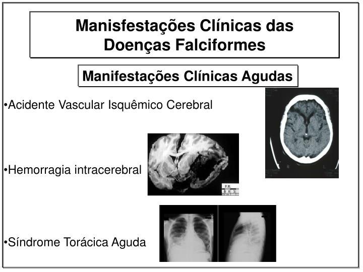 Acidente Vascular Isquêmico Cerebral