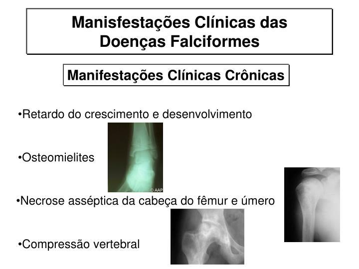 Osteomielites