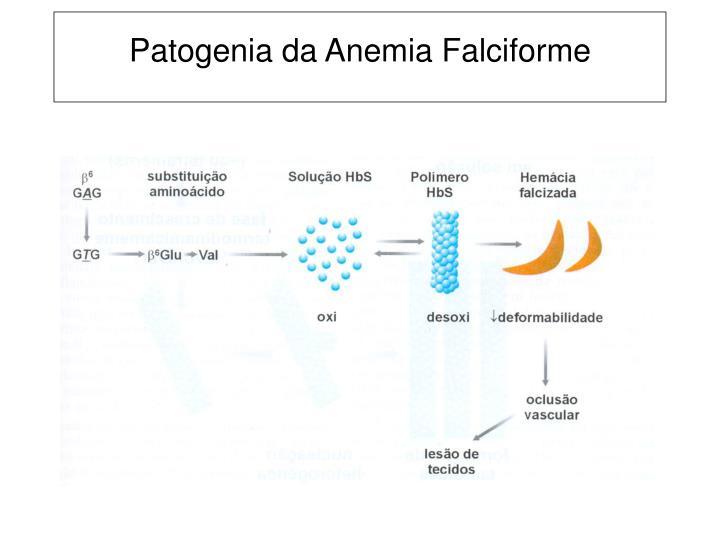 Patogenia da Anemia Falciforme