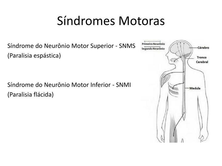 Síndromes Motoras