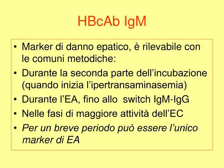 HBcAb IgM