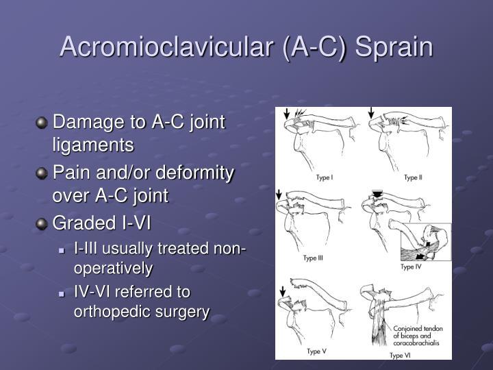 Acromioclavicular (A-C) Sprain