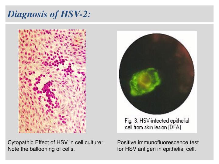 Diagnosis of HSV-2: