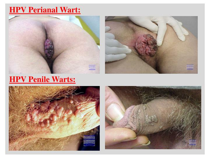 HPV Perianal Wart: