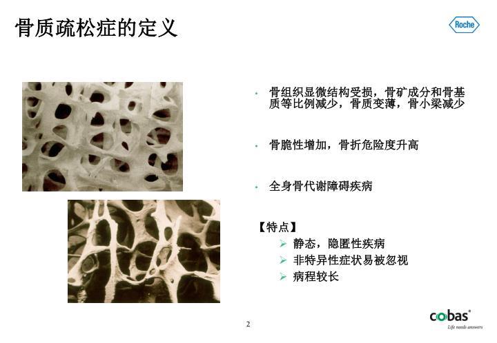 骨质疏松症的定义