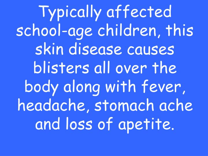 Typically affected school-age children, this skin disease causes blisters all over the body along with fever, headache, stomach ache and loss of apetite.