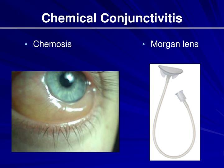Chemical Conjunctivitis