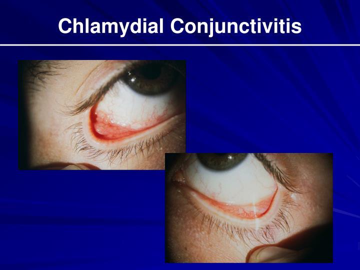 Chlamydial Conjunctivitis