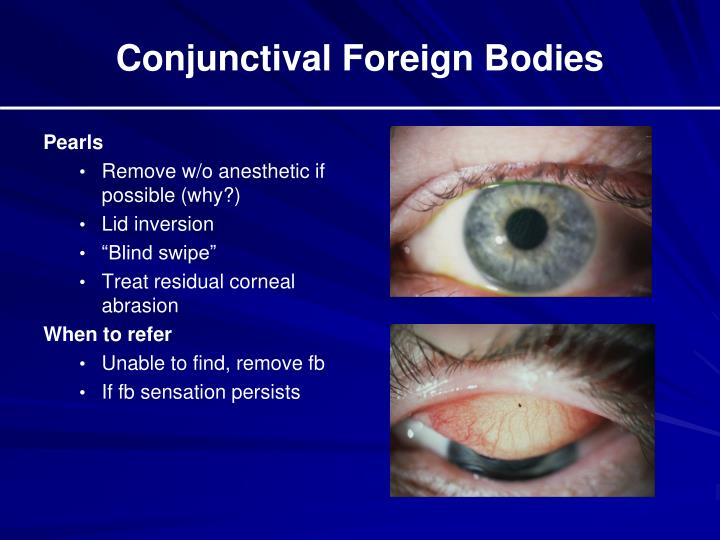 Conjunctival Foreign Bodies
