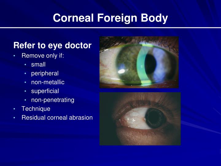 Corneal Foreign Body