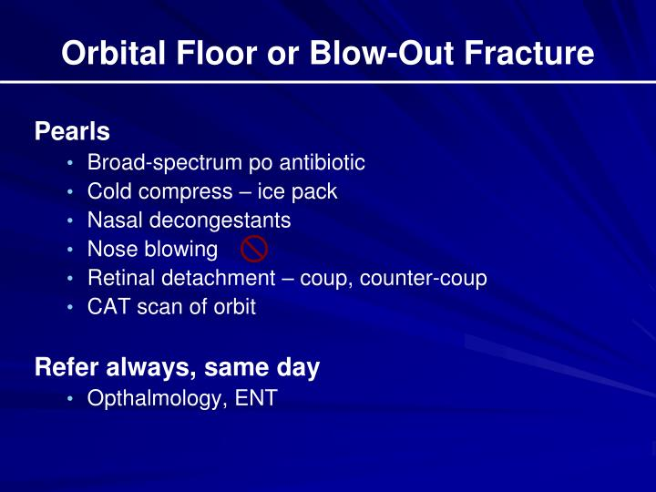 Orbital Floor or Blow-Out Fracture