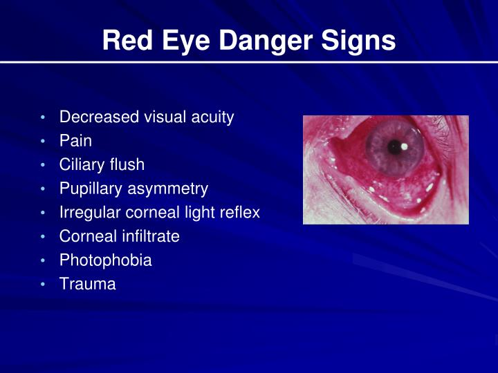 Red Eye Danger Signs