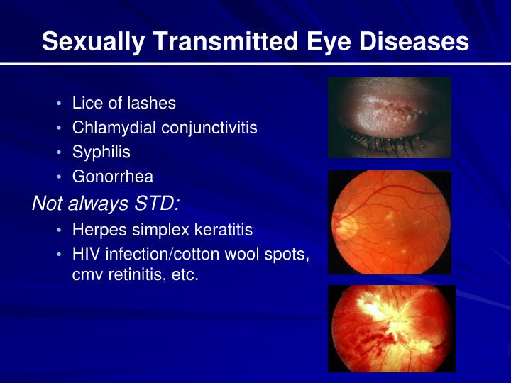 Sexually Transmitted Eye Diseases