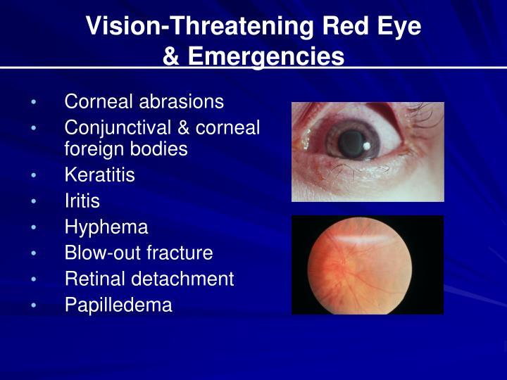 Vision-Threatening Red Eye