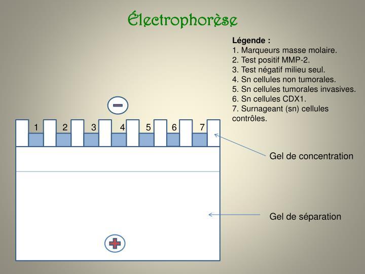 Électrophorèse