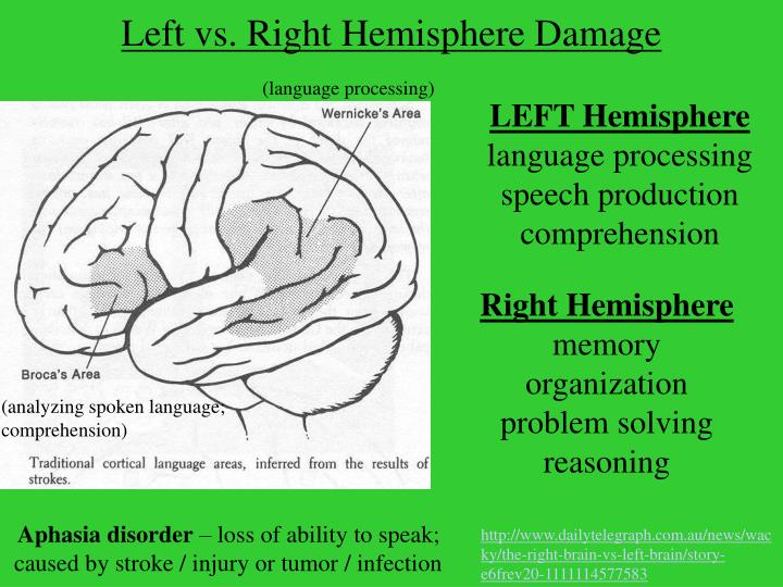 Left vs. Right Hemisphere Damage