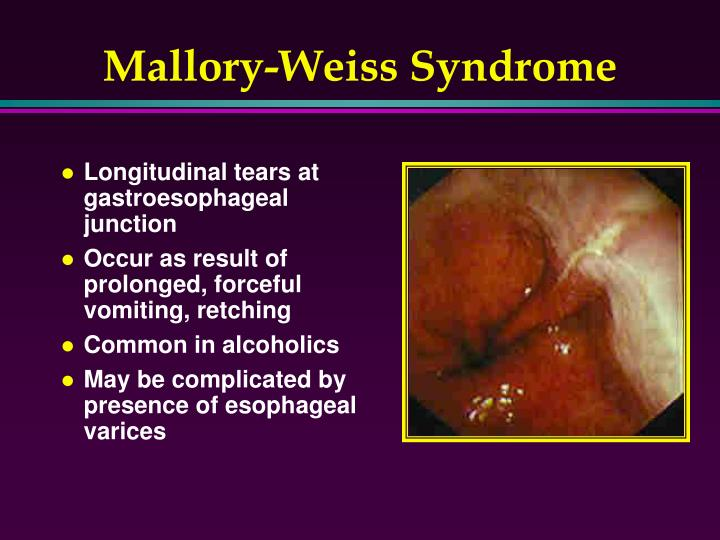 Mallory-Weiss Syndrome