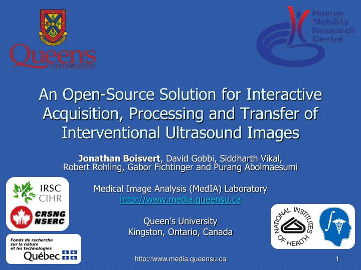 An Open-Source Solution for Interactive Acquisition, Processing and Transfer of Interventional Ultrasound Images