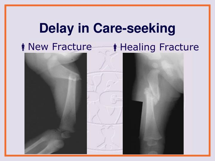 New Fracture