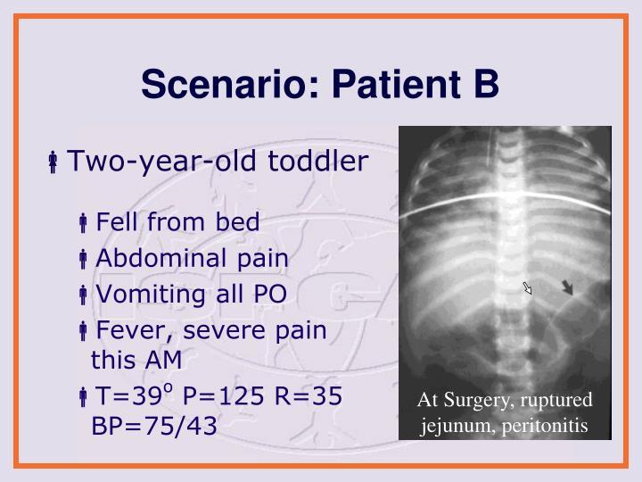 At Surgery, ruptured jejunum, peritonitis