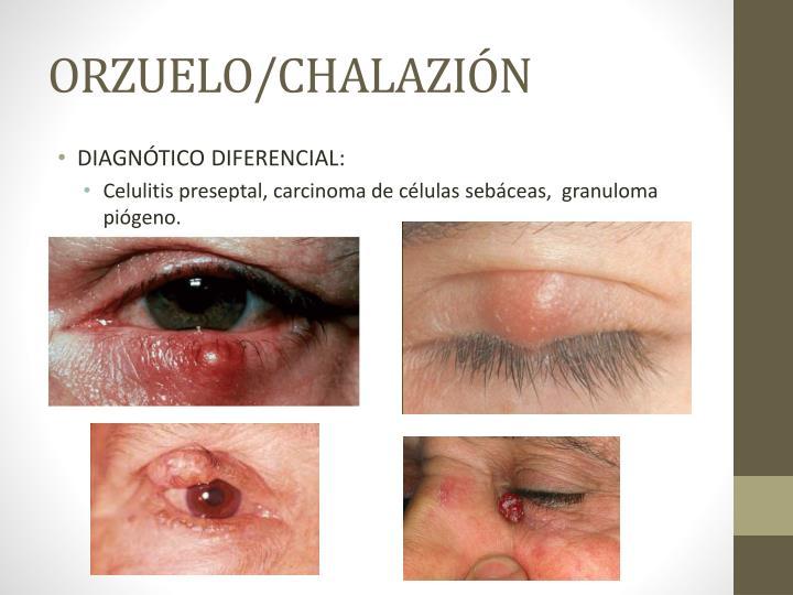 ORZUELO/CHALAZIÓN