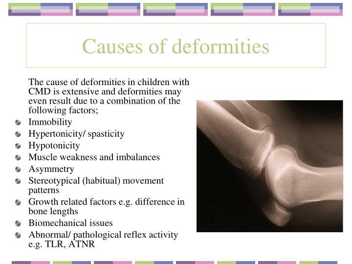 Causes of deformities