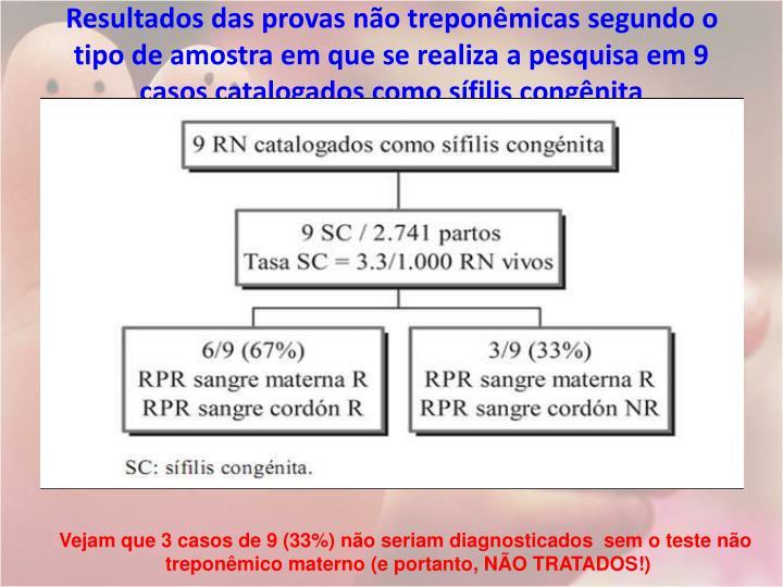 Resultados das provas não treponêmicas segundo o tipo de amostra em que se realiza a pesquisa em 9 casos catalogados como sífilis congênita