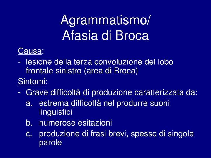 Agrammatismo/
