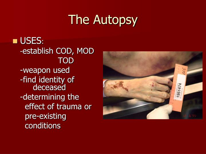The Autopsy